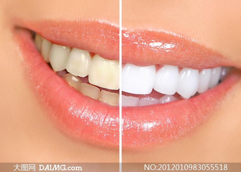 牙齿美白前后对比高清摄影图片