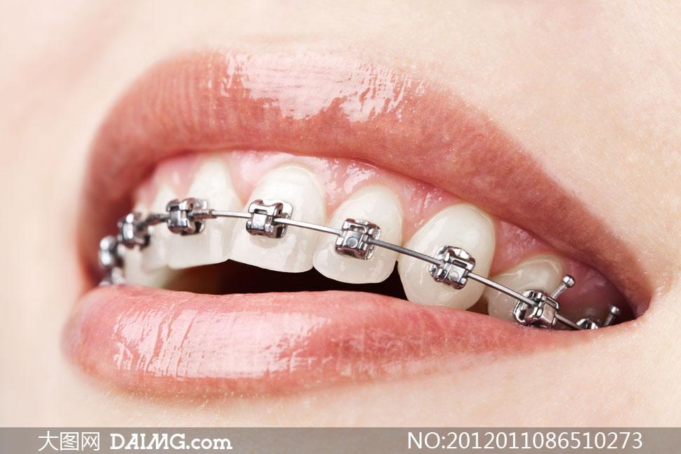 牙套矫正牙齿特写高清摄影图片