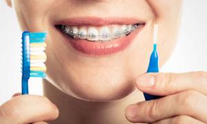 牙齿矫正主题人物特写摄影高清图片